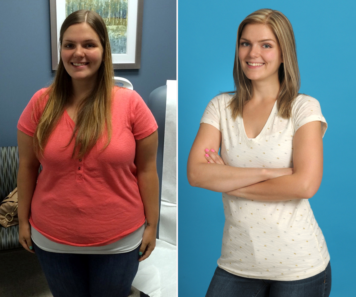 Bariatric And Metabolic Weight Loss Center Stony Brook Medicine