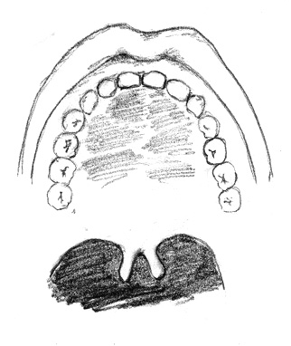 Submucous Cleft with Bifid Uvula