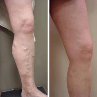 varicose vein treatment recovery